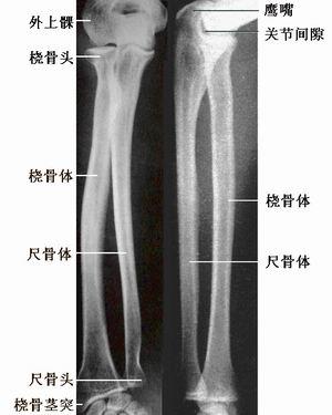 节及前臂骨X线解剖 图文