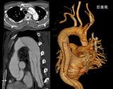华西医院完成国内首例Bentall术后再发急性A型主动脉夹层患者的全腔内修复治疗