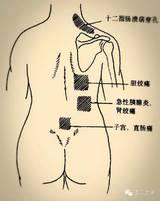 图解:常见腹痛的放射区!