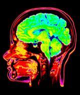 疼痛有多痛 脑扫描技术将神经科学带上法庭