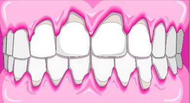 牙周炎患者正畸治疗的时机与顺序