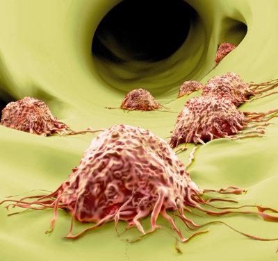 癌症免疫疗法最新进展:免疫检查点阻断